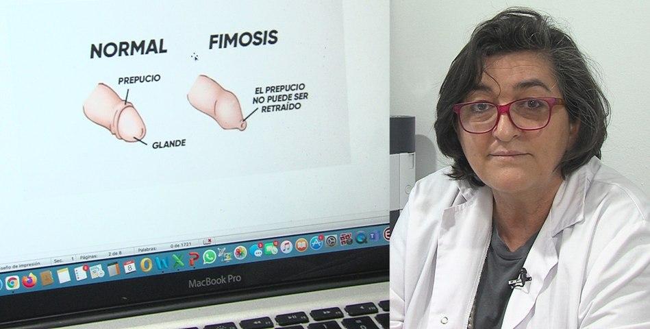 Fimosis: cuando el pene está encapuchado