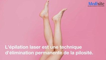 Epilation au laser : comment sa marche ?