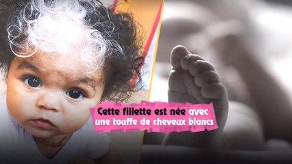 Cette fillette est née avec une touffe de cheveux blancs, tout comme sa mère..