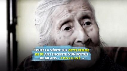 Toute la vérité sur cette femme de 91 ans enceinte d'un fœtus de 40 ans « fossilisé »
