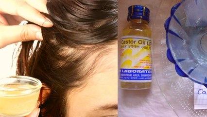 Hair Mask Title:  लंबे और घने बालों के लिए लगाएं प्याज का हेयर मास्क, जानें बनाने का तरीका | Boldsky
