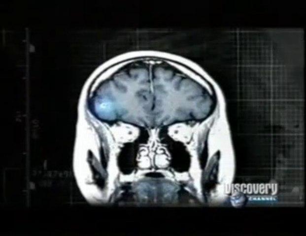 Neurocisticercosis: Larvas de tenia en el cerebro