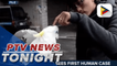 China sees first human case of H10N3 bird flu strain