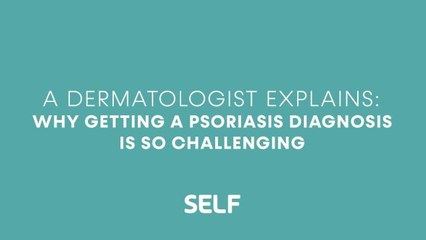 A Dermatologist Explains: Why Getting a Psoriasis Diagnosis Is So Challenging