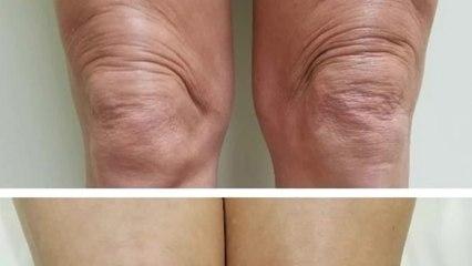 Rejuvenecimiento de la rodilla con instalift