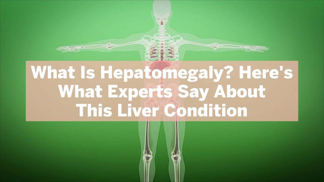 What Is Hepatomegaly? Here's What Experts Say About This Liver Condition