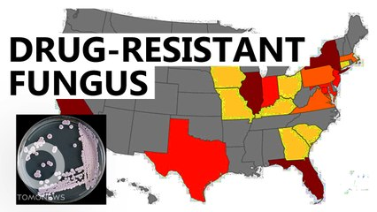 美國抗藥性「超級真菌」爆發 感染後無藥可醫