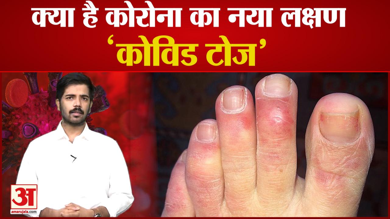 Coronavirus New Symptom Covid Toes | हाथों और पैरों की उंगलियों को कर रहा प्रभावित