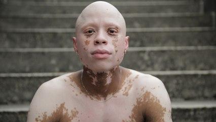 Acne Medication Gave Me Vitiligo & Alopecia | SHAKE MY BEAUTY