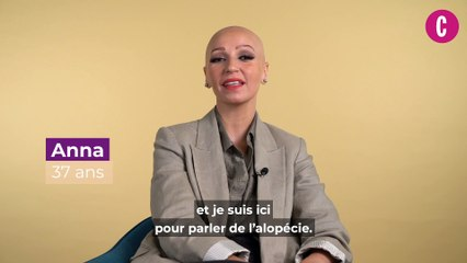 Témoignage : vivre avec l'alopécie