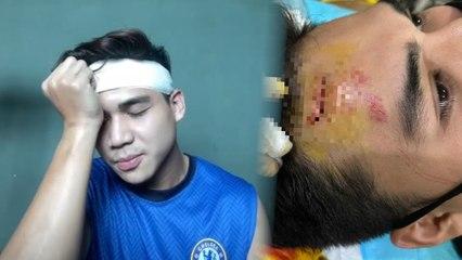 Kasihan Atiq Azman, kepala berjahit gara-gara mandi sungai... peminat pun tumpang rasa pedih