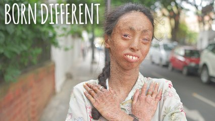 The Girl Whose Skin Peels Off | BORN DIFFERENT
