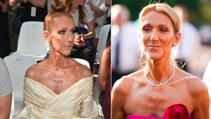 Céline Dion : la réalité concernant sa perte de poids critique, choix ou maladie?