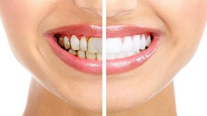 दांतों में कालापन क्यों होता है । दांतों का कालापन दूर करने के उपाय । Boldsky