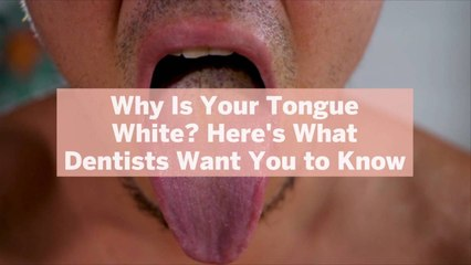 Why Is Your Tongue White? Here's What Dentists Want You to Know