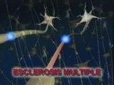 Esclerosis multiple: Clinica y epidemiologia