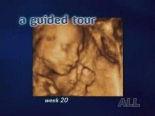Echographie vidéo 3D du foetus