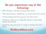 Fast Way To Get Rid Of Acne-Rid Acne Fast